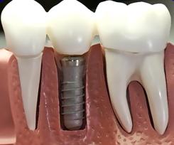 la dimensione dell'impianto è simile o leggermente inferiore alla radice di un dente