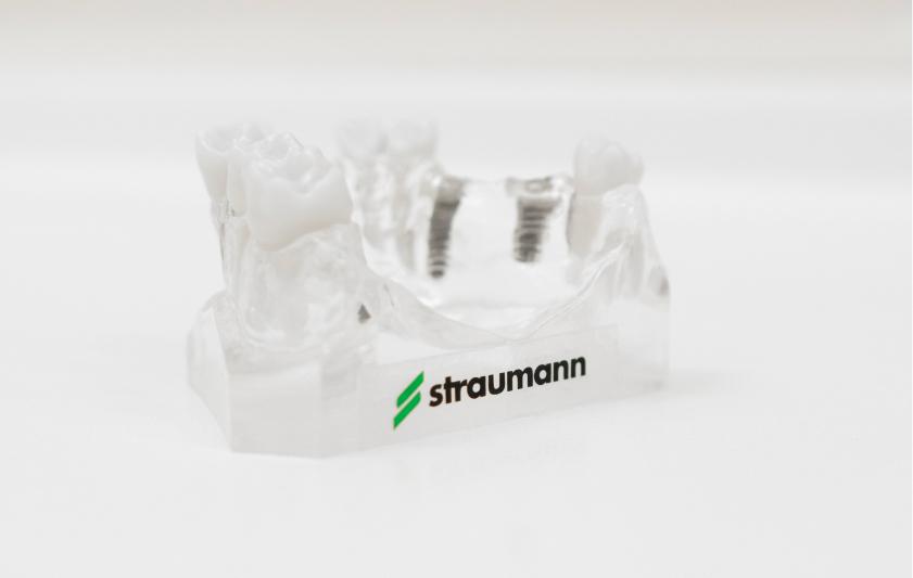 Implantologia | Studio Dentistico Pandolfi