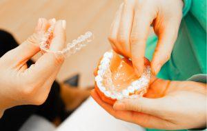 Ortodonzia invisibile | Studio Dentistico Pandolfi