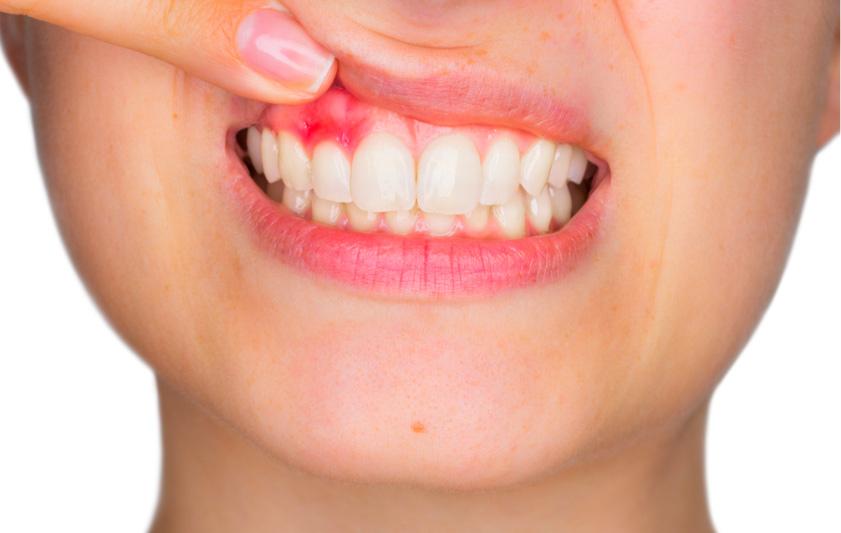 Parodontologia | Studio Dentistico Pandolfi