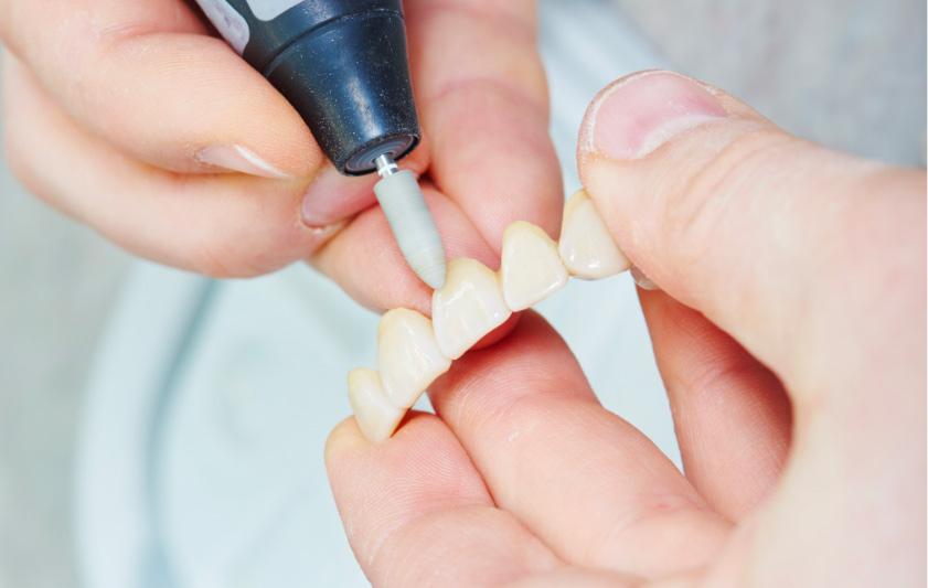 Protesi | Studio Dentistico Pandolfi