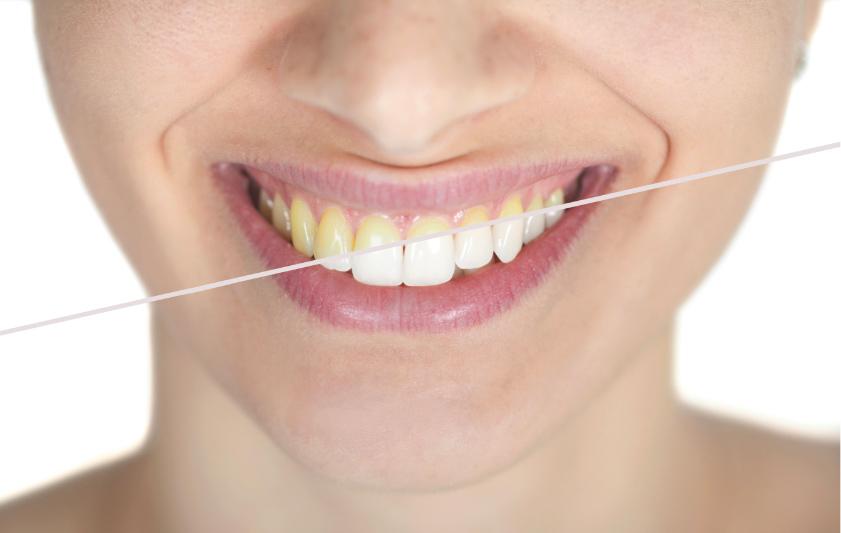 Sbiancamento | Studio Dentistico Pandolfi