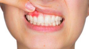 parodontite sintomi | Studio Dentistico Pandolfi Aprilia