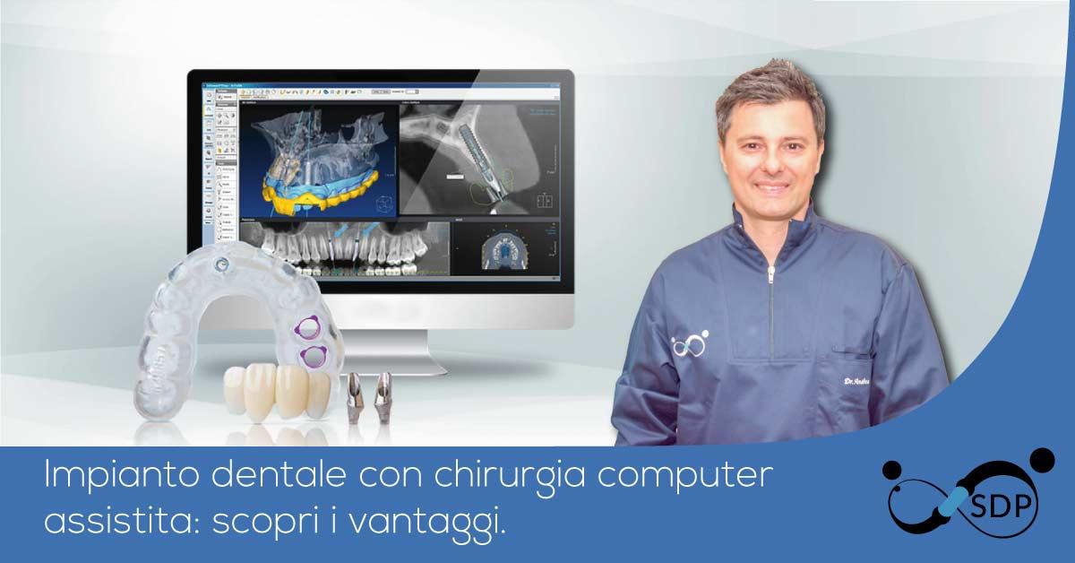 Chirurgia computer assistita | Studio Dentistico Pandolfi | Dentista a Latina